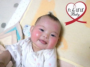 子宮内膜症の軽減・妊娠(33歳)